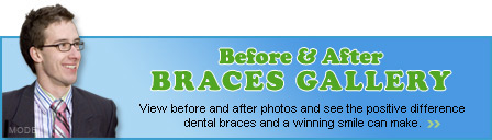 Before & After Braces Gallery